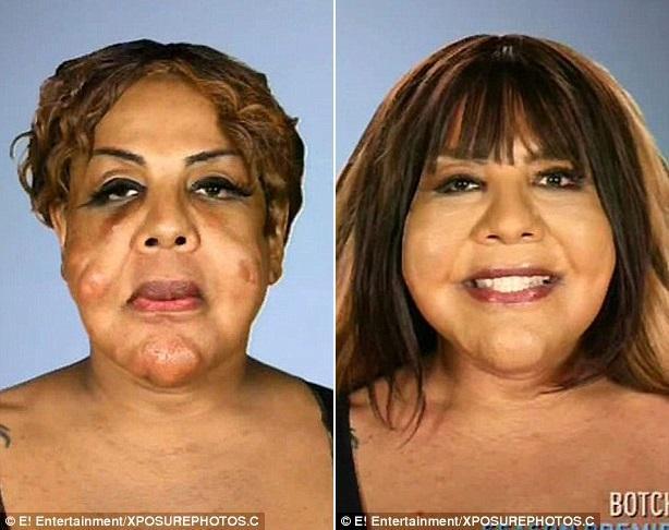 Transgender Surgery Charlotte, Nc