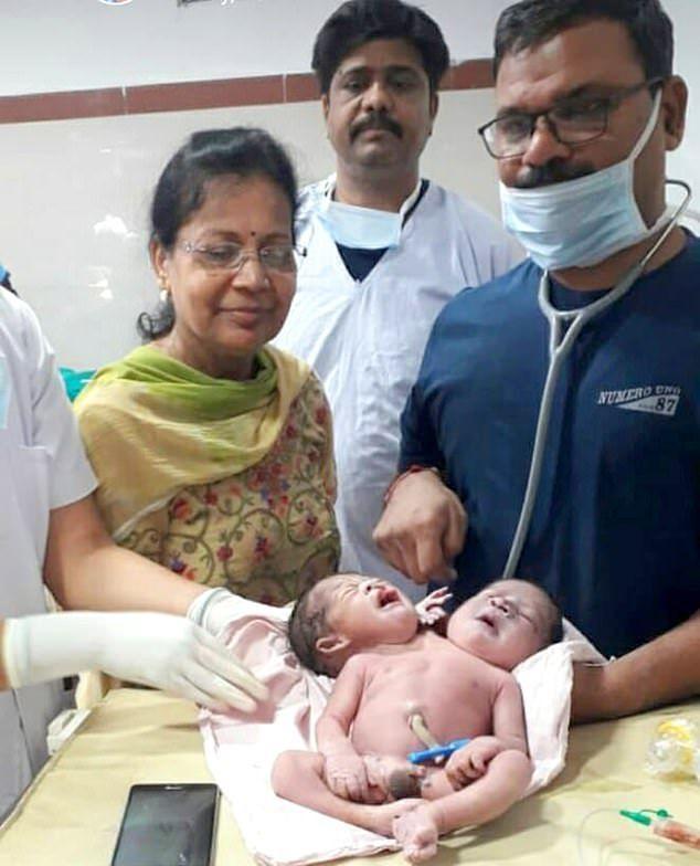 Индианка родила ребенка с 2 головами и 3 руками
