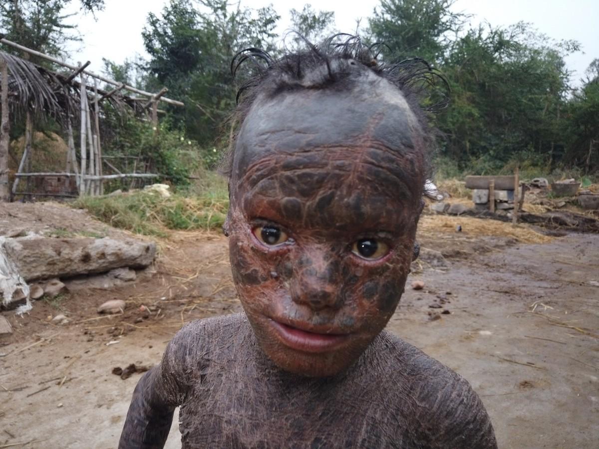 10-летнего мальчика называют человеком-змеей из-за толстых чешуек, покрывающих его тело