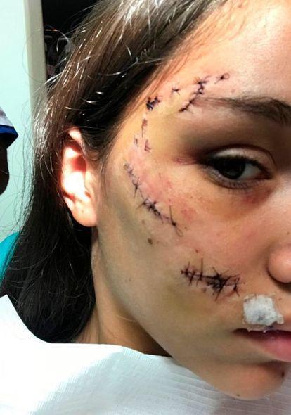 Собака изуродовала лицо девушки во время фотосессии