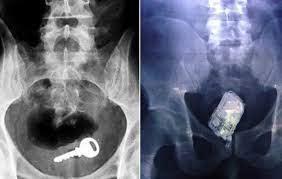 Врачи делятся рассказами о пациентах, поступивших к ним с посторонними предметами застрявшими у них в заднем проходе
