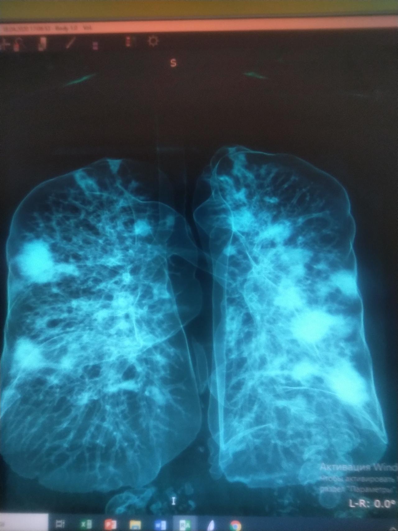Легкие здорового человека vs легкие с COVID-19