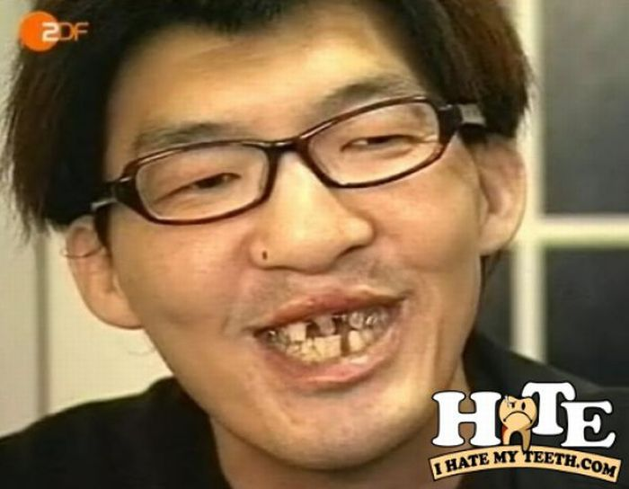 Ужасные зубы фото 6.