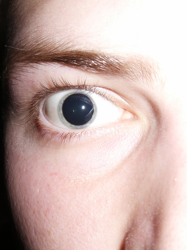 FileDilated pupils 2006.jpg - Wikipedia, the free encyclopedia.