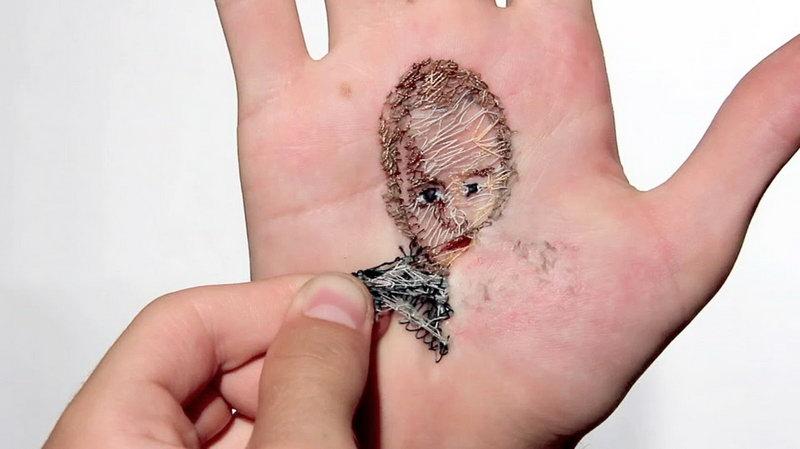 паразиты под кожей человека симптомы