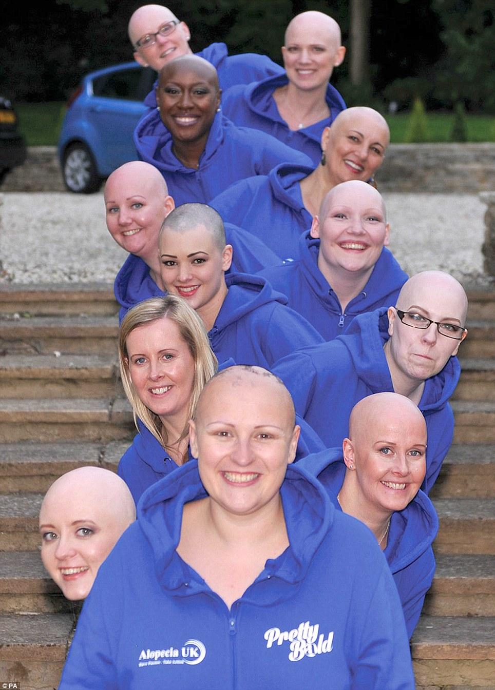 Рак так так лысая девчонка 19 фотография